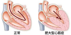 肥大型心筋症が生じた心臓
