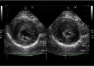 肥大型心筋症の猫の超音波検査