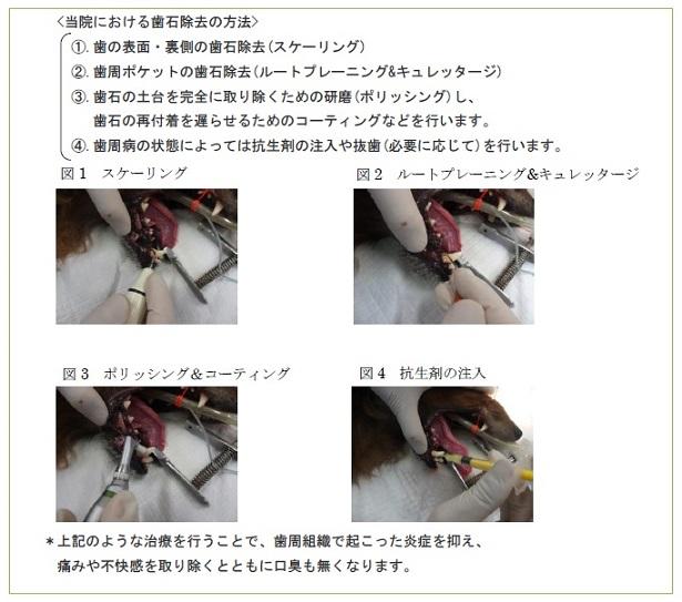 歯石除去の方法