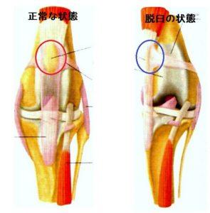 膝蓋骨脱臼画像