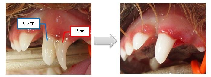 乳歯遺残2
